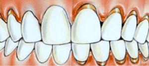 зъбен-камък-2