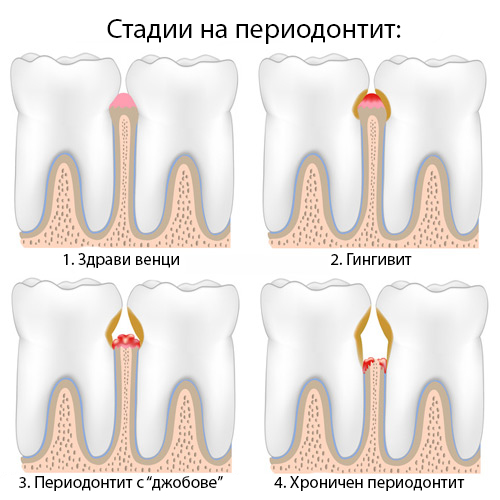 periodontitis_stages