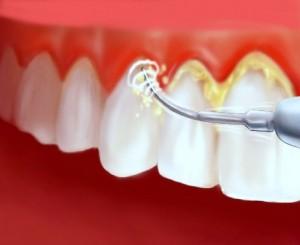 зъбен-камък
